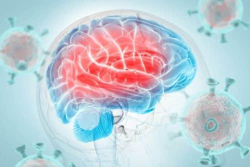 Comment traiter les maux de tête?